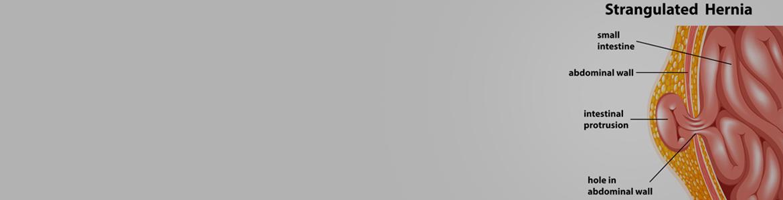 bruchleiden-strangulated-hernia-facharztpraxis-fur-bauch-und-enddarmchirurgie-berlin-mitte-1
